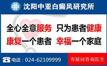 白癜风常见白癜风发病原因有哪些;中亚专家为你讲解
